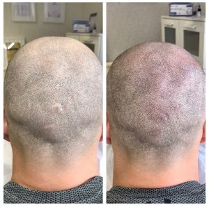 Before & After hair loss treatment for men