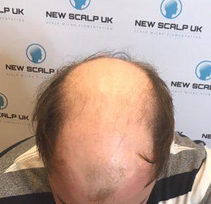 before male hair loss treatment
