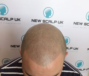 after male hair loss treatment