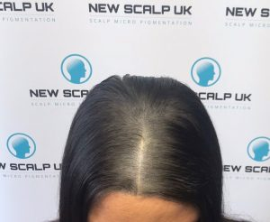 after female hair loss treatment