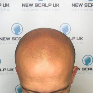 Hair loss clinic Barnsley before treatment