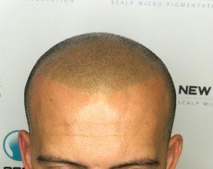 Hair loss clinic Barnsley treatment