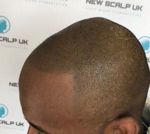Hair Loss clinic in Cardiff treatment