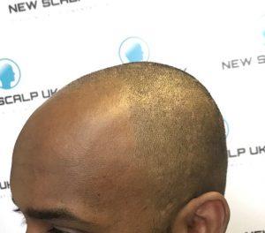 consultation new scalp