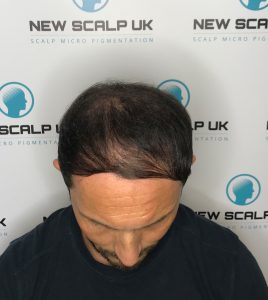 SMP Treatment Barnsley before treatment