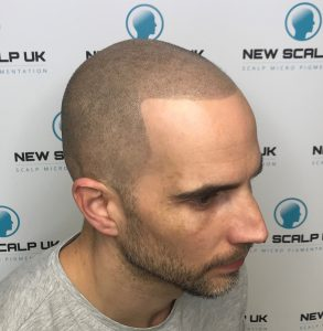 Scalp Mircopigmentation Cardiff after
