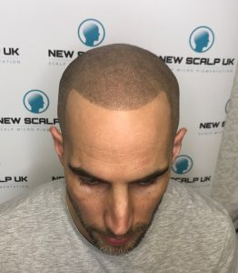 SMP for Alopecia after treatment