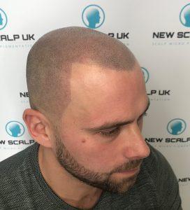 Scalp Mirco pigmentation for men