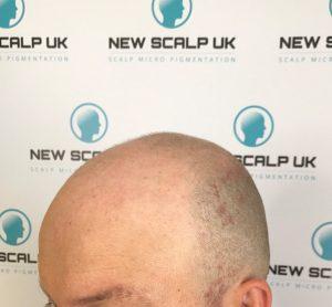 hair loss Before treatment for men