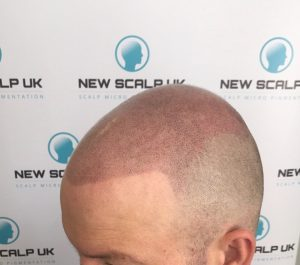 hair loss treatment for men after