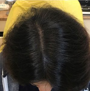 hair loss clinic in Barnsley after