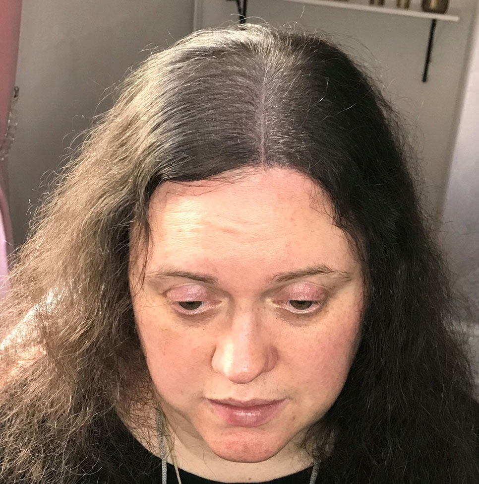After treatment to hair loss