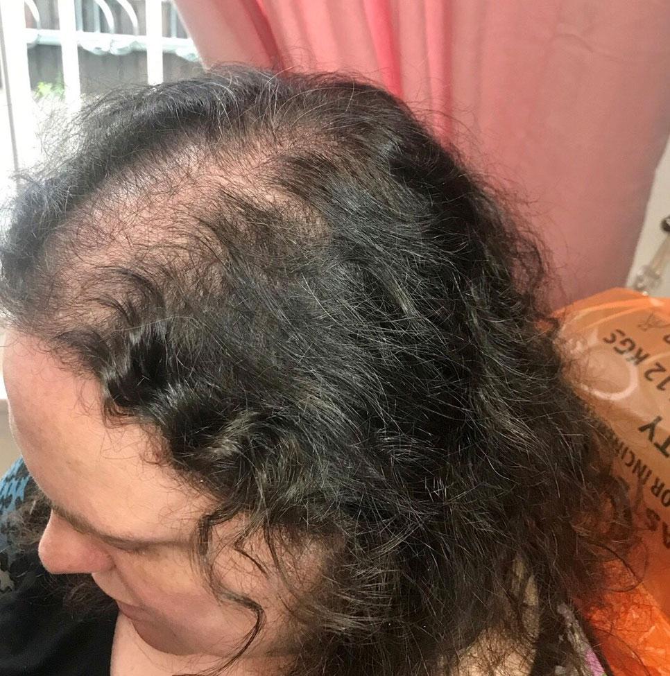 Treatments for Hair Loss