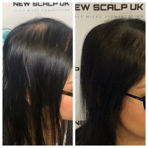 Thinning hair treatment for men and women
