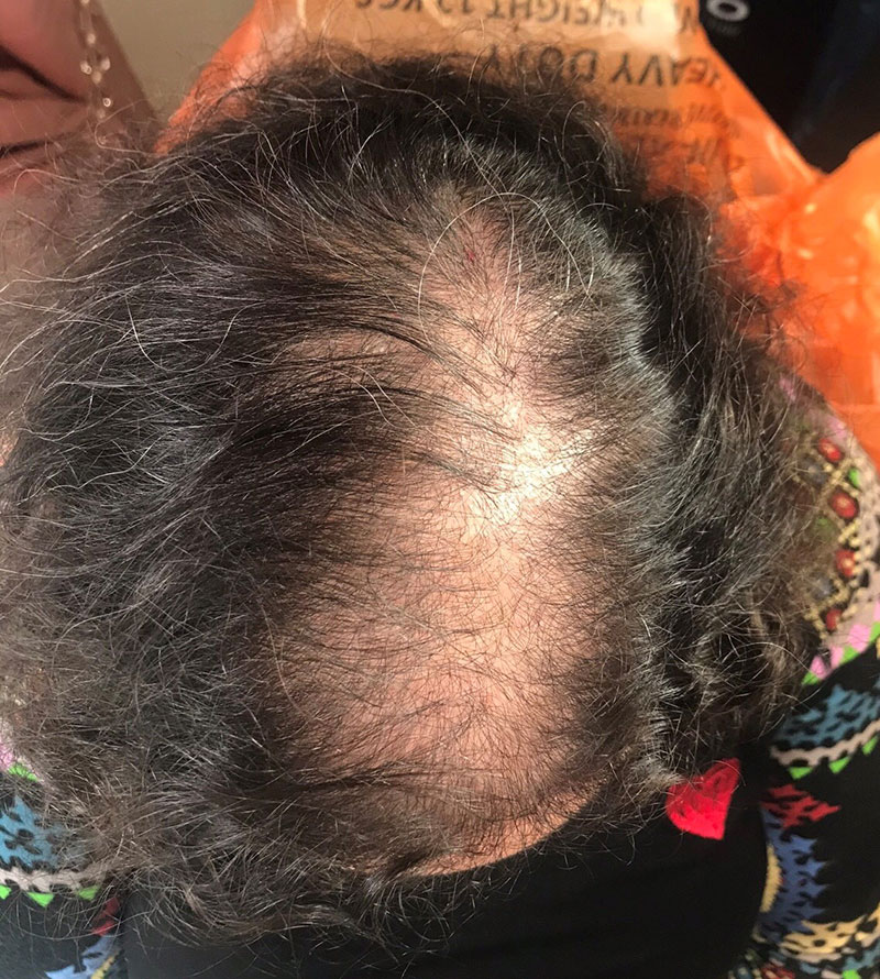 Scalp Mircopigmentation for Women