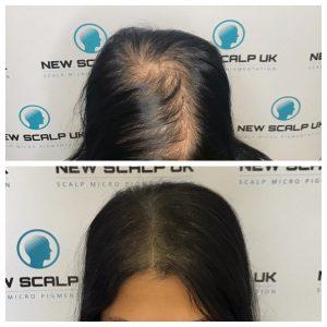 SMP for Alopecia