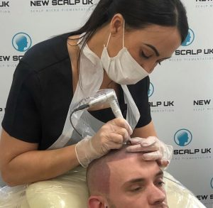 SMP Treatment Barnsley