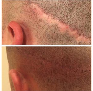 Head scar treatment