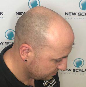 Hair Loss treatments Before