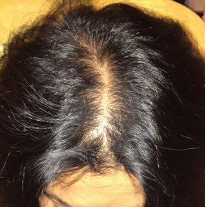 hair loss clinic in Barnsley before