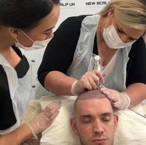 Treatment for Alopecia Cardiff