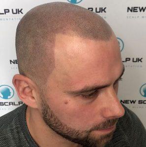 Barnsley Hair Tattoo