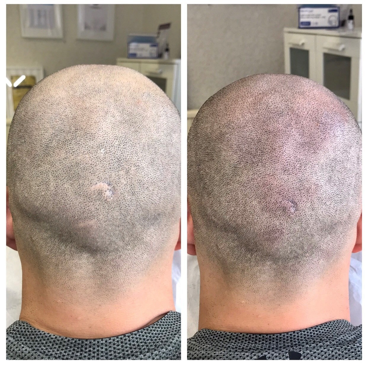 Before and after pictures of a man that has had scalp micropigmentation